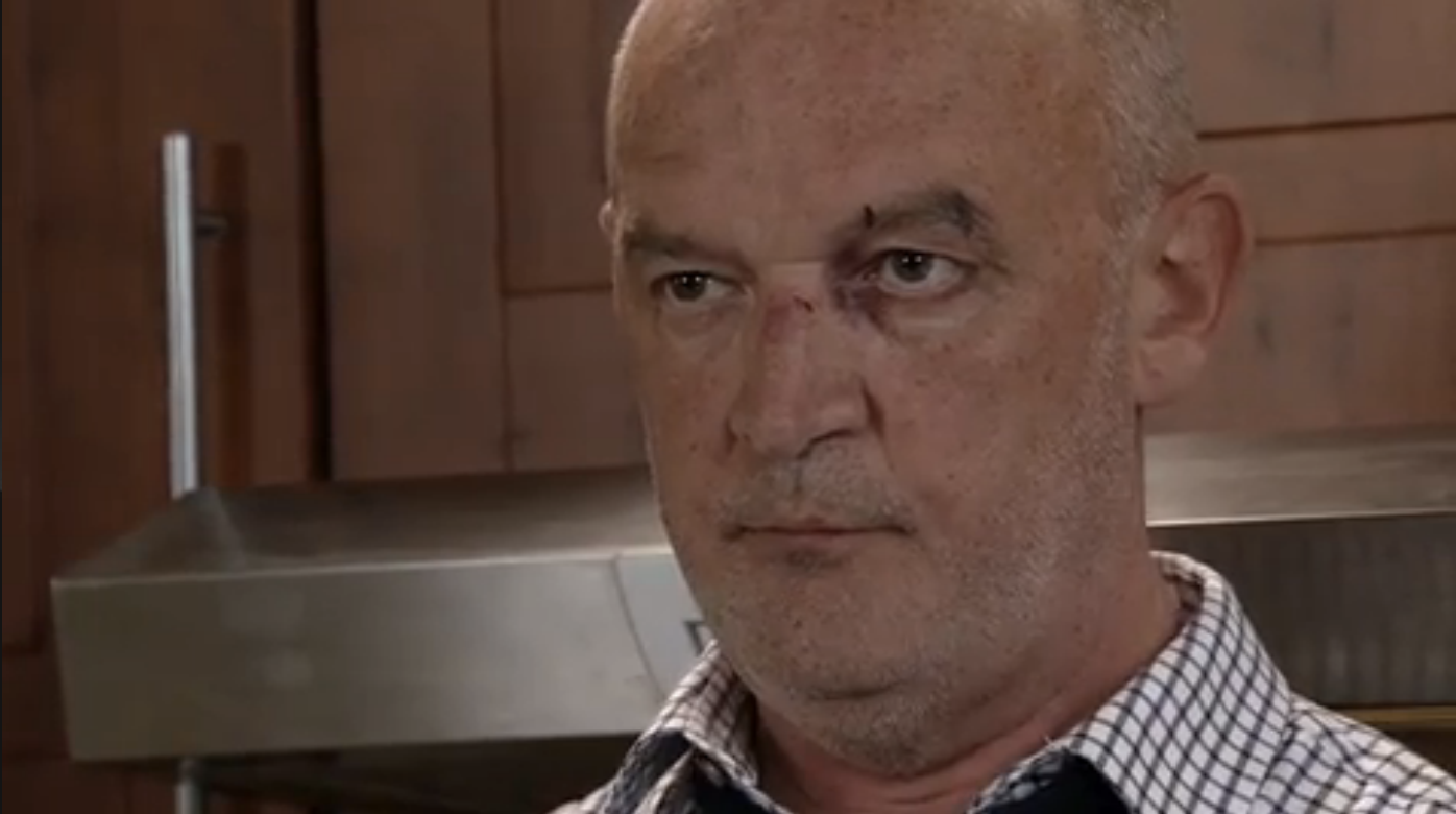 Coronation Street Spoilers Why Is Pat Phelan Bruised And