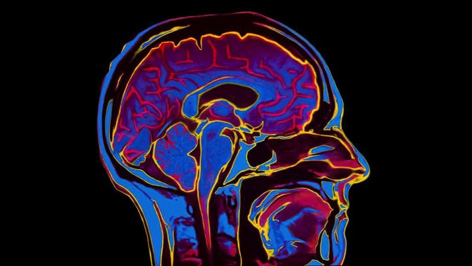 Five incredible advances in brain disease treatment