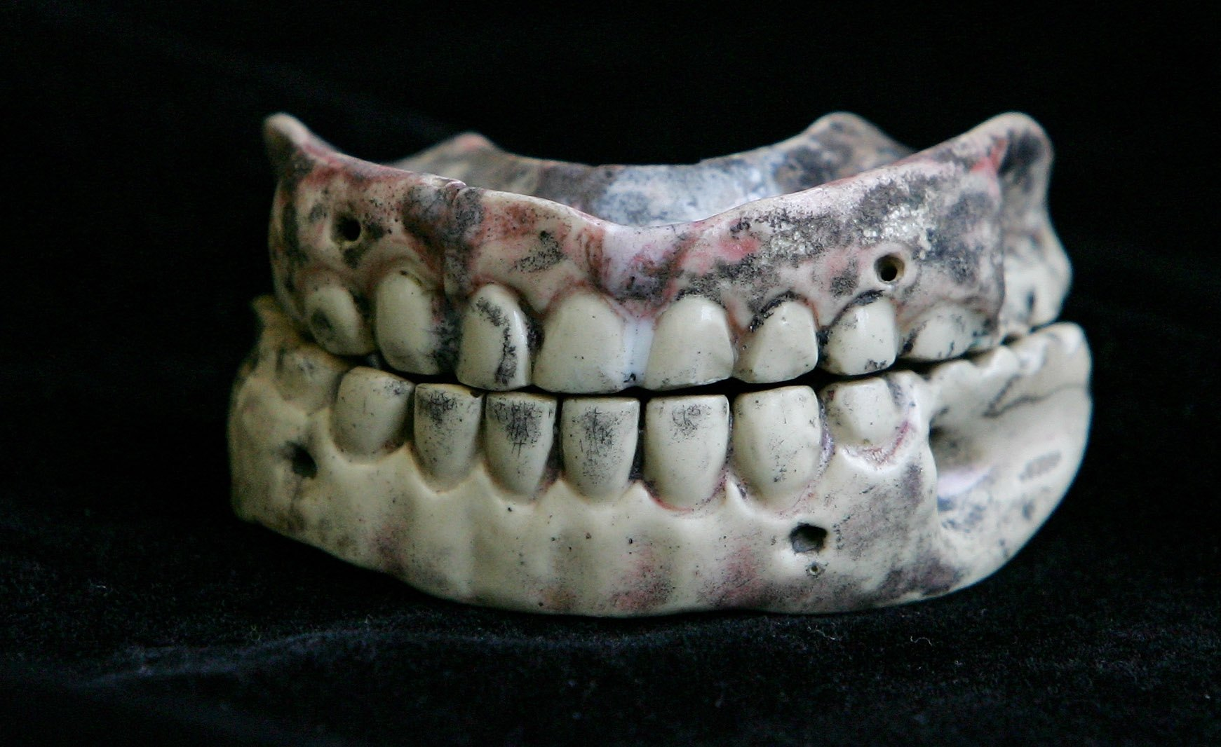 LONDON - OCTOBER 05: A set of 18th century dentures are prepared to go on public display for the first time at the Museum of London October 5, 2006 in London, England. The 200-year old set of false teeth belonged to Arthur Richard Dillon (1721-1806), Archbishop of Narbonne in France. Archaeologists discovered them, still in his mouth, when they opened his coffin in London's St Pancras graveyard during excavations in advance of construction work at the Channel Tunnel Rail Link's new London terminus. (Photo by Scott Barbour/Getty Images)