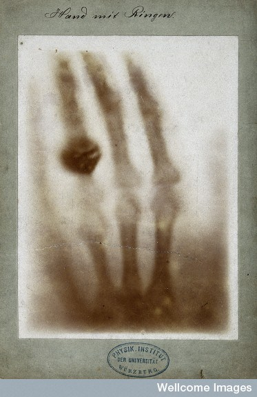 V0029523 X-ray of the bones of a hand with a ring on one finger Credit: Wellcome Library, London. Wellcome Images images@wellcome.ac.uk http://images.wellcome.ac.uk The bones of a hand with a ring on one finger, viewed through x-ray. Photoprint from radiograph by W.K. von Röntgen, 1895. 1895 By: Wilhelm Konrad von RöntgenPublished:  -   Copyrighted work available under Creative Commons by-nc 2.0 UK, see http://images.wellcome.ac.uk/indexplus/page/Prices.html