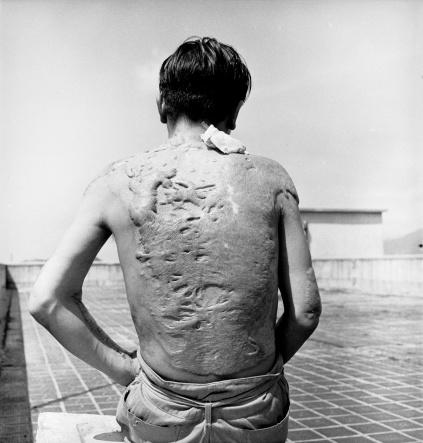 Hiroshima-burns_0-f13196d