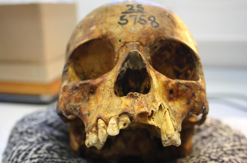 A human skull from the Duckworth Collection at the University of Cambridge