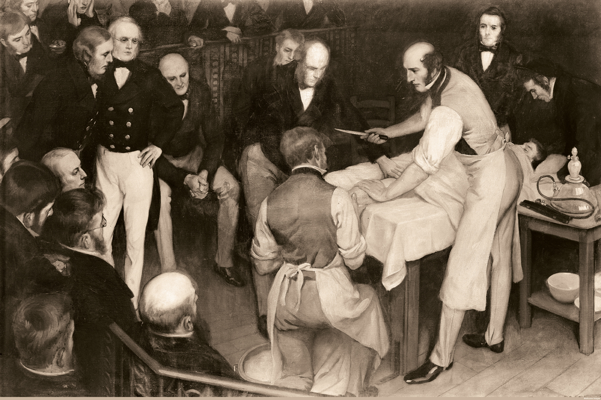 M0005603 Robert Liston operating.Credit: Wellcome Library, London. Wellcome Imagesimages@wellcome.ac.ukhttp://wellcomeimages.orgRobert Liston operating. The artist was Ernest Board of Bristol (1877-1934), and this was one of the paintings he was commissioned to paint by Henry S. Wellcome circa 1912.OilErnest BoardPublished:  - Copyrighted work available under Creative Commons Attribution only licence CC BY 4.0 http://creativecommons.org/licenses/by/4.0/