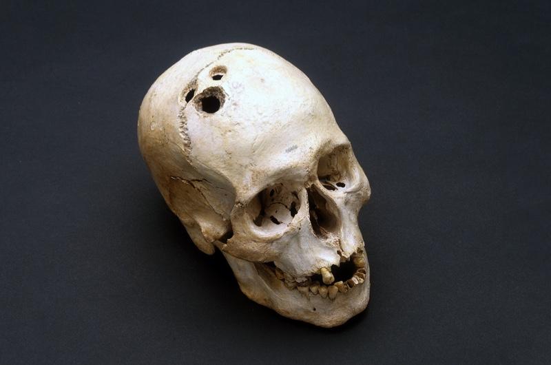 trepann-skull-2-d355cfe